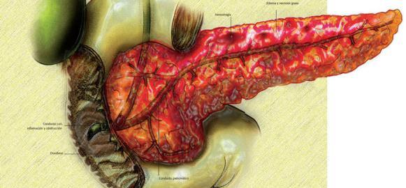 acute pancreatic