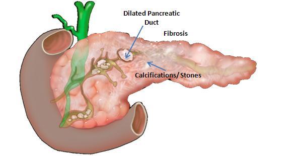 chronic pancreatic