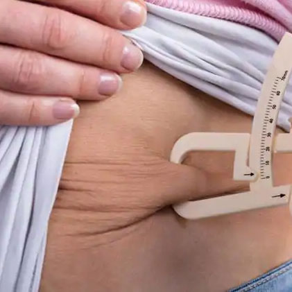 Bariatric (Weight Loss) Surgery?
